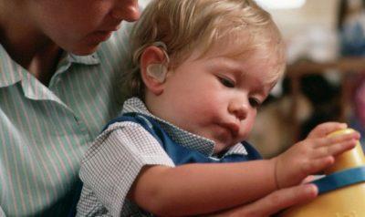 gangguan dengar pada anak dengan CMV